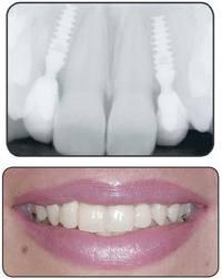 Что такое стоматологические импланты2