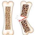 Причины остеопороза2