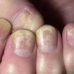 Грибковая инфекция2