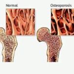 Как лечить остеопороз2