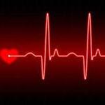 Лечение мерцательной аритмии сердца