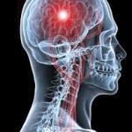 Инсульт. Диагностика, лечение и профилактика.