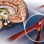 Инсульт. Диагностика, лечение и профилактика2
